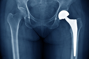 Wright Medical Hip Replacements